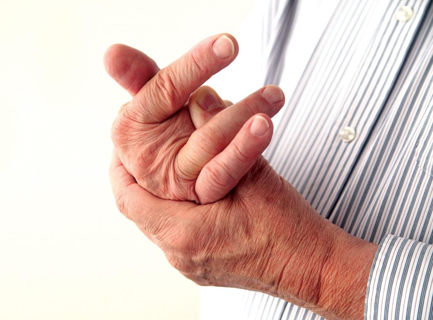 bệnh Gout nổi ám ảnh kinh hoàng 3